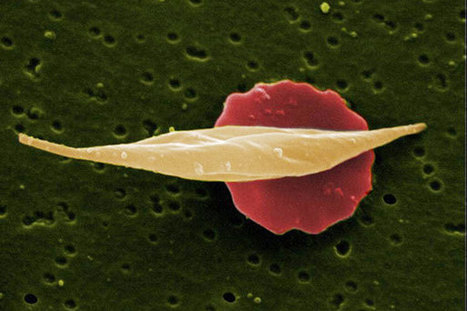 'Achilles' heel' of sickle cell disease?   Stem Cell News   Scoop.it