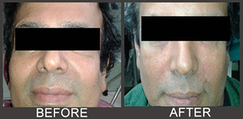Anti Wrinkle Treatment Can Make You Look Younger | Business | Scoop.it