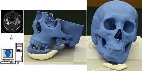 European Countries to Begin 3D Printing Human Bones | Planning, Budgeting & Forecasting | Scoop.it