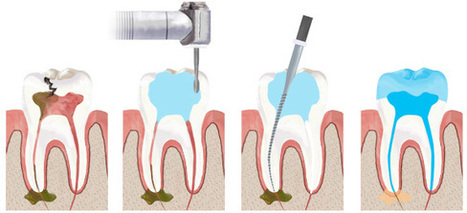 Are You Looking For Root Canal Treatment at Low Cost., Hyderabad | Best Dental Hospital Chanda Nagar | Scoop.it