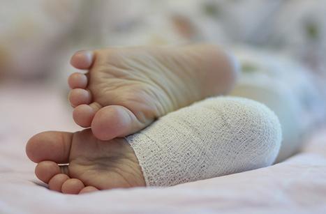 Accidents durant la 1ère année de la vie de l'enfant | Santé de l'enfant et du nourrisson | Scoop.it