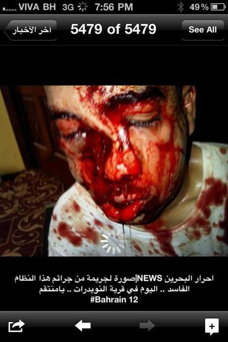 Nuwaidrat: 9/30/2011 Protester with broken nose | Human Rights and the Will to be free | Scoop.it