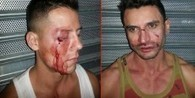 Porn Star Edin Sol in Violent Gay Bashing, NYC's 3rd in One Week | Daily Crew | Scoop.it
