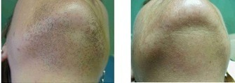 Laser Hair Removal | Asian Skin | Scoop.it