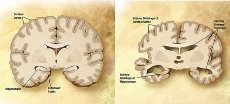 How a new approach to funding Alzheimer's research could pay off   Social Neuroscience Advances   Scoop.it