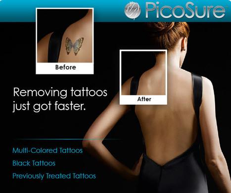 Tataway of Boston Offers the PicoSure Method of Tattoo Removal ... | Tataway-Boston | Scoop.it