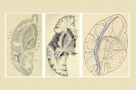 Brain Pathway Rediscovered After 100 Years | Learning & Mind & Brain | Scoop.it