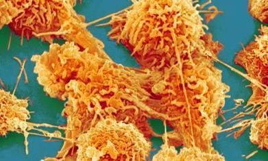 Le cancer : un programme génétique ancestral ? | Planète Paléo | Scoop.it