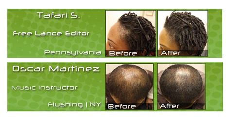 Bio Follicle™ All Natural & Organic Complete Hair Support System | Thinning Solutions | Stop Hair Loss | Scoop.it
