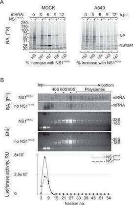 A technique to increase protein yield in a rabbit reticulocyte lysate translation system | protein production bits and bobs | Scoop.it