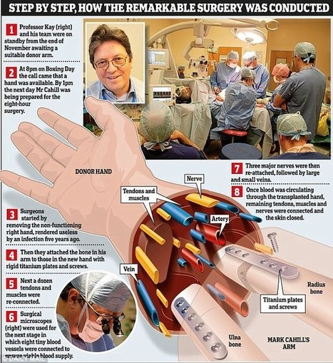 Hand transplant recipient now plans to drive a manual car | Organ Donation & Transplant Matters | Scoop.it