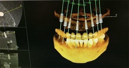 Dental Imaging Center Bay Area Gets 3D Dentistry Right | Dental Implants | Scoop.it