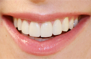 Wear Your Confidence In Your Smile With Smile Makeover Techniques | Cosmetic Dentist | Scoop.it