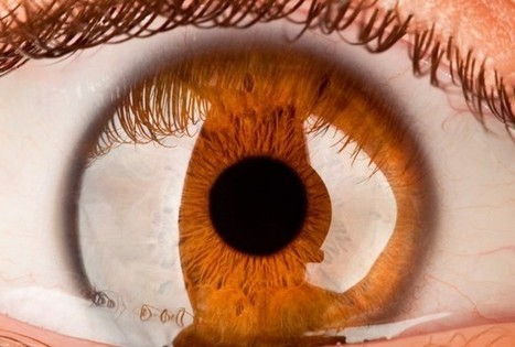 Possible Link To Glaucoma In Newly Discovered Eye Layer - Health News - redOrbit | Corneas & Contacts | Scoop.it