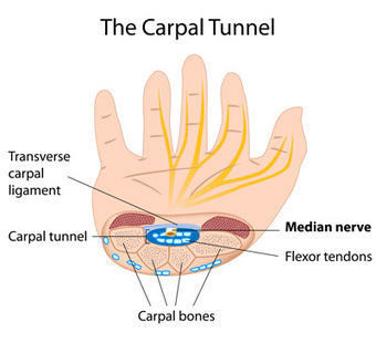 Symptoms for Carpal Tunnel Syndrom | Robert Duke | Scoop.it