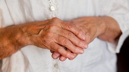 New technique holds promise for treatment of rheumatoid arthritis | Longevity science | Scoop.it