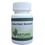 Natural Herbs For Seborrheic Keratosis | Natural Herbs Clinic | Scoop.it