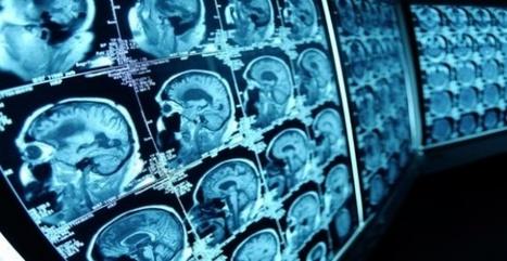GE Healthcare va connecter 500.000 machines d'imagerie médicale à une plateforme de partage   eHealth in Switzerland   Scoop.it
