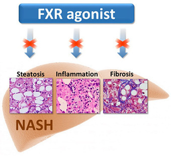 Akarna Therapeutics FXR Agonists NASH | Hepatitis C New Drugs Review | Scoop.it