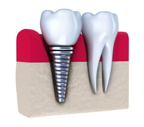 What is Dental Implant And Its Types | Dental Implants & Hair Transplant | Scoop.it