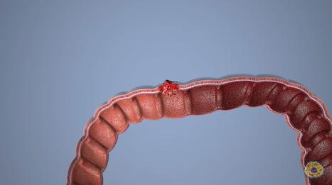 Las células tumorales se alían con las sanas para extender el cáncer de colon / Noticias / SINC - Servicio de Información y Noticias Científicas | Genética humana | Scoop.it