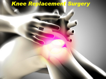 Knee Replacement Surgery – the what, why and how of it | Rheumatologists and Orthopaedic Surgeons | Scoop.it