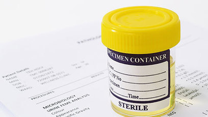 Will widespread drug testing at work ever take off? Personnel Today [It has been rolled out in NZ] | Drugs, Society, Human Rights & Justice | Scoop.it