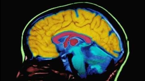 Onderzoek toont aan: kunstenaars hebben ander brein | literatuuractua Dylan Vandamme | Scoop.it