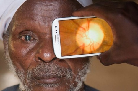 Simple Smartphone Add-On Targets Preventable Blindness | DigiPharmaBlog | Scoop.it