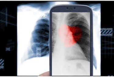 Un smartphone pour détecter les maladies pulmonaires ?   Hopital 2.0   Scoop.it