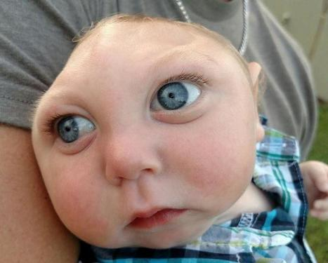 Baby born with most of his skull missing celebrates his first birthday | UnSpy - For Liberty! | Scoop.it