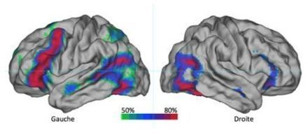 A dominant hemisphere for handedness and language?   Social Neuroscience Advances   Scoop.it