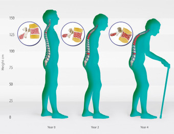TACKLING THE BONE LOSS - OSTEOPOROSIS | We CARE Life - Wellness revolution | Scoop.it