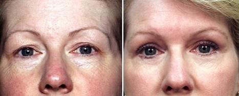 Jerry Vostom Shares » Eyelid Lift Surgery Baltimore - Facts That Can Help You Make the Right Decision | Best website pages | Scoop.it