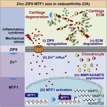 Is zinc the missing link for osteoarthritis therapies? | Medical Engineering = MEDINEERING | Scoop.it