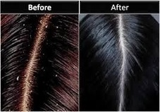 shocked blogger: How To Get Rid Of Dandruff Naturally From Home | Dandruff | Scoop.it