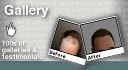 The Hair Transplant Consultancy Group | The Hair Transplant Consultancy Group | Scoop.it