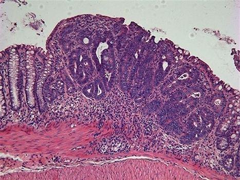 La cirugía oncológica permite superar hasta el 95% de los tumores ... - Europa Press | Farmacia y salud | Scoop.it
