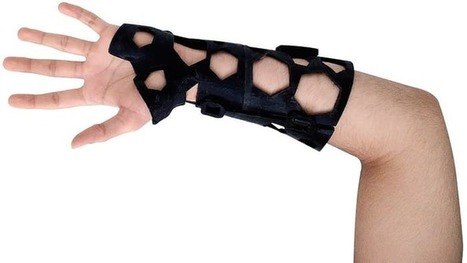 Could the 3D-printed cast put plaster to pasture? | 3D Virtual-Real Worlds: Ed Tech | Scoop.it