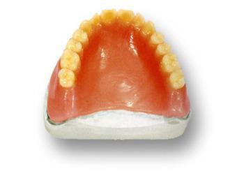 Les risques des prothèses dentaires chinoises | Toxique, soyons vigilant ! | Scoop.it