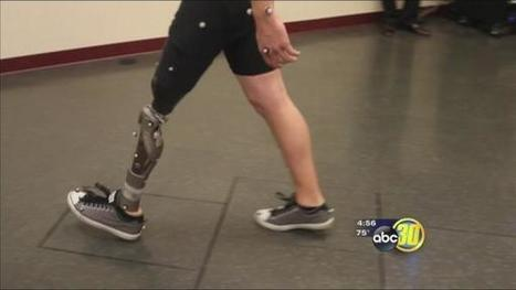 Prosthetics that never have to be removed | Aspect1 | Scoop.it