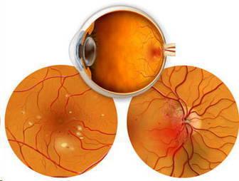 Hasta el 20% de los pacientes que se someten a una operación de cataratas puede desarrollar edema macular cistoide   Salud Visual 2.0   Scoop.it