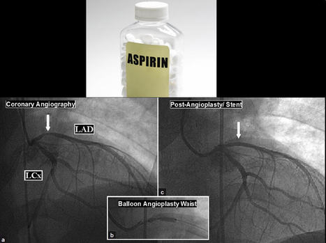 Angioplasty Performed Without Pre-Procedural Aspirin | Heart and Vascular Health | Scoop.it