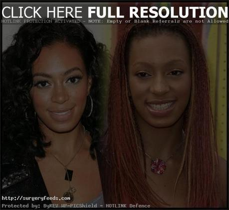 Ciara Plastic Surgery Before and After Photo | Plastic Surgery Before and After Photos | Scoop.it