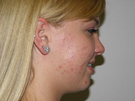 Say Goodbye to Your Acne Problems at Ease | onlineremedy | Scoop.it