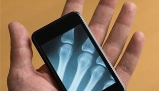 From eHealth to mHealth: mobile phones look after your health | mHealth: Patient Centered Care-Clinical Tools-Targeting Chronic Diseases | Scoop.it