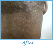 Bumps Centre Ltd ! Before and After Treatment of Pseudofolliculities and ingrown hair | Bumps Centre Ltd | Bump, bumps | Scoop.it