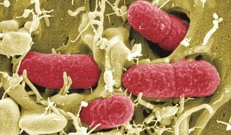 Vaikeat ruokamyrkytykset lisääntyneet – lapsilla vaarallista ehec-bakteeria | TE2 Linkkigalleria | Scoop.it