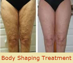 Use Body Shaping, Skin Tightening And Cellulite Treatment To Stay Fit | Cellulite Treatments Melbourne | Scoop.it