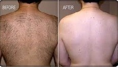 Permanent Hair Removal | Best hair and Skin care Specialist in Hyderabad | Scoop.it